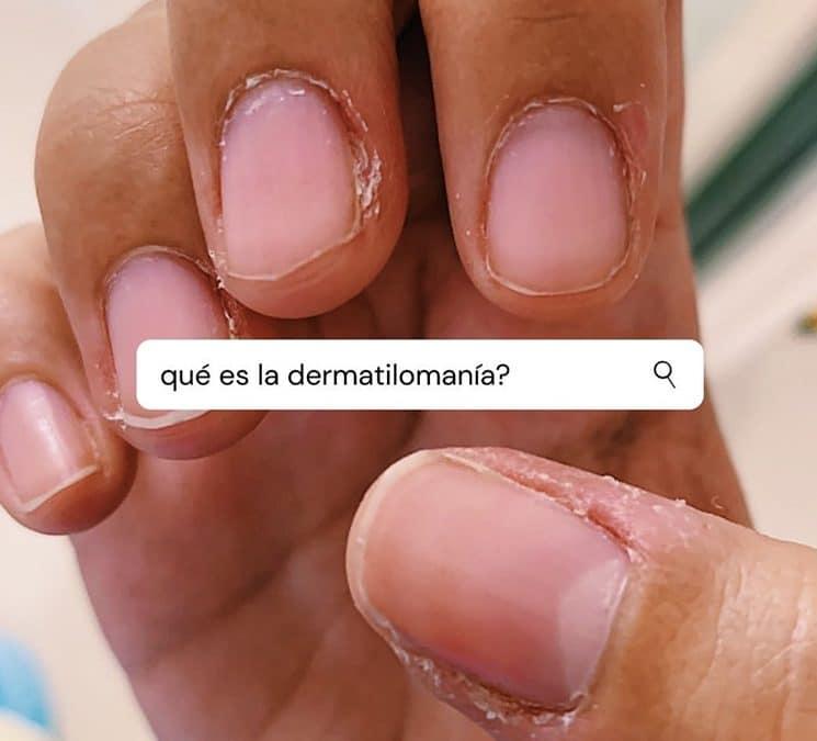 ¿Qué es la dermatilomanía? – Preguntas y respuestas de esta condición.